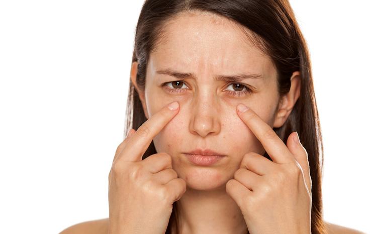 86 main - Как избавиться от синяков под глазами