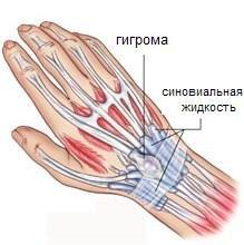 shishka na zapyaste ruki gigroma zapyastya 4 - Гигрома кисти - как от нее избавиться