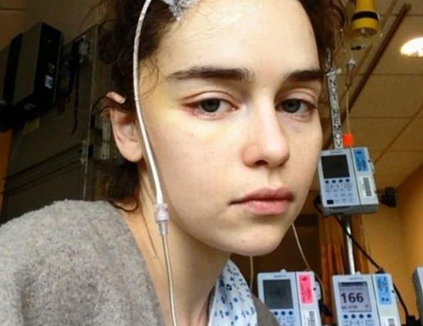 """emiliya klark070200 615x474 - Эмилия Кларк рассказала о тяжелой болезни, которую пережила во время съемок """"Игры престолов"""""""