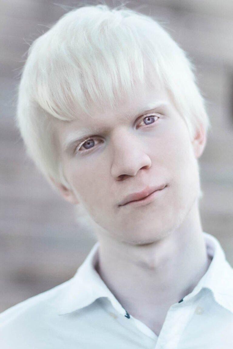 событие самый белый человек в мире фото мнению активистов