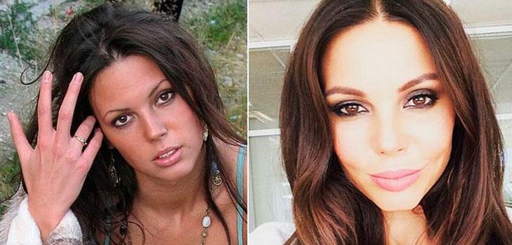 Самойлова до и после пластической операции
