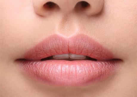 krasivye guby - 7 вопросов о коррекции губ гиалуроновой кислотой