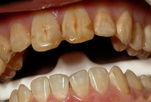 flyoroz zubov - Зубная паста с фтором опасна?