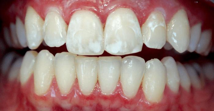 flyuoroz - Зубная паста с фтором опасна?