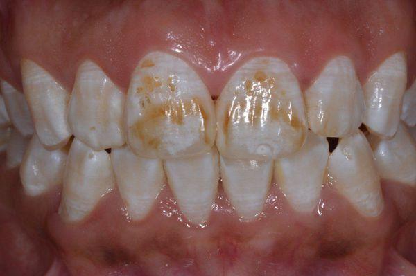 porazhenie zubnoy emali pri flyuoroze s - Зубная паста с фтором опасна?