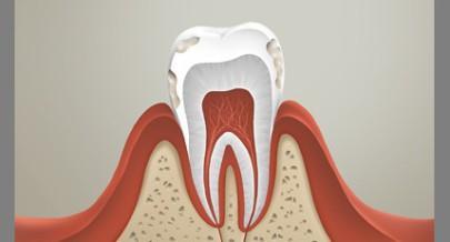 razrushenie zuba - Зубная паста с фтором опасна?