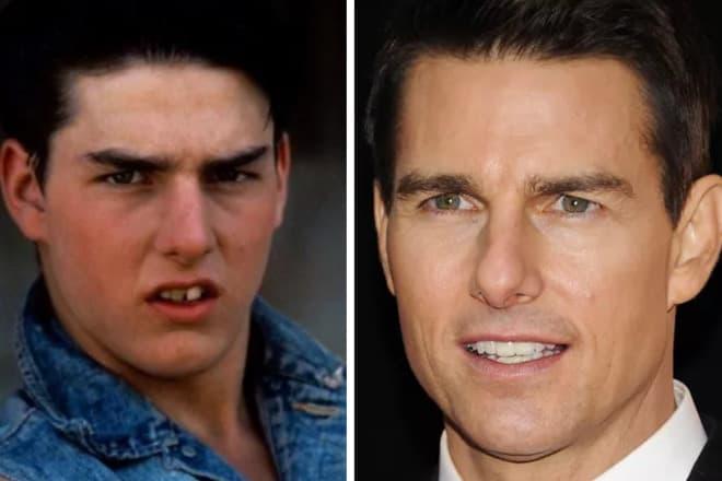 Том Круз зубы