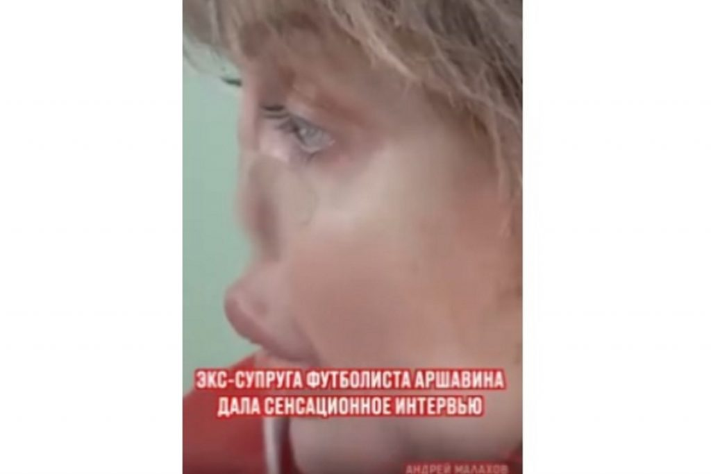 Что случилось с лицом экс-супруги Аршавина
