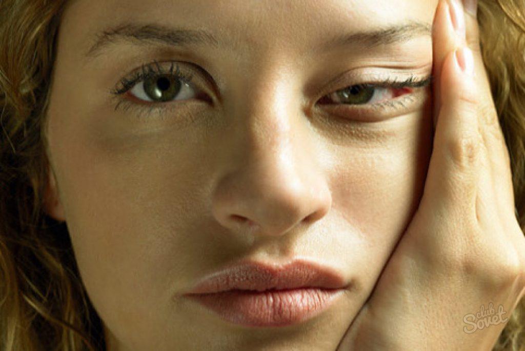 otechnost 1 1024x684 - Как избавиться от отечности лица по утрам?